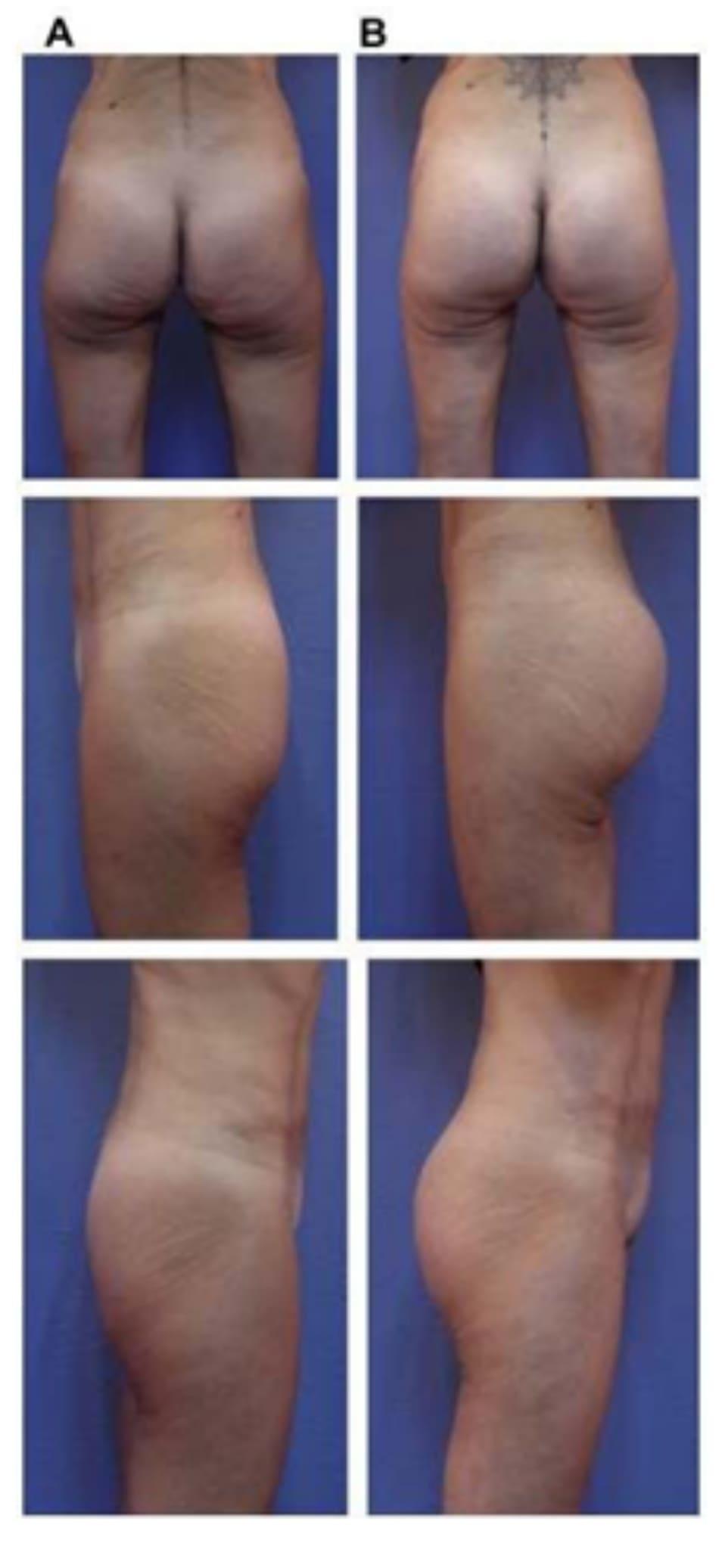 Hình. 21. (A) Hình anh trước và (B) và sau phẫu thuật làm đầy mông của bệnh nhân có vùng thắt lưngtương đối phẳng. Bệnh nhân được đặt khối im- plant dưới cân thể tích 330 mL ở hai bên.