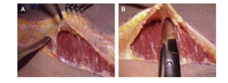 Hình. 3. (A) Lớp cân mạc che phủ cơ mông lớn. (B) Bóc tách lớp cân và cơ để tạo mặt phẳng cấy ghép. (Trích từ de la Pena JA, Rubio OV, Cano JP, et al. Subfascial Nâng mông. Clin Plast Surg 2006;33:409; đã xin phép trước khi đăng tải.)