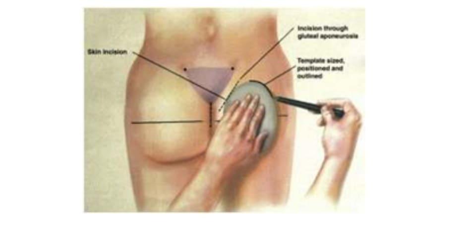 Hình. 6. Rạch da cạnh xương cùng, thực hiện bóc tách theo một góc nghiêng từ đường rạch tới giới hạn là đường bờ ngoài xương cùng. Sau đó tiếp cận tới lớp cân nông, rạch cân và đặt túi cấy dưới cân, trên bề mặt cơ mông lớn.(Trích từ de la Pena JA, Rubio OV, Cano JP, et al. Subfascial Nâng mông. Clin Plast Surg 2006;33:411; đã xin phép trước khi đăng tải.)