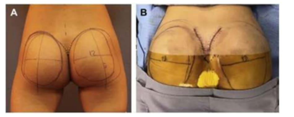 Hình. 8. (A) Phẫu thuật được lên kế hoạch, sử dụng các tiêu bản phù hợp với vùng mông của bệnh nhân với các đường rạch dài 6cm ở hai bên, trên vị trí hậu môn ít nhất 5cm. (B) Đây là hình ảnh bệnh nhân với tiền sử có bệnh lý liên quan vùng mông, đồng thời đã từng thực hiện hút mỡ mông trước đó, nên chúng tôi quyết định đặt đường rạch cao hơn bình thường để tránh các biến chứng.