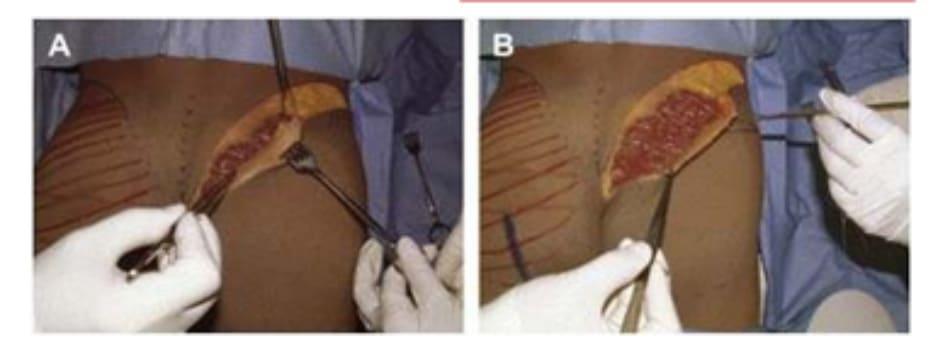 Hình. 9. Đánh dấu các mốc giải phẫu quan trọng. (A) Đường rạch cân cơ mông lớn bắt đầu từ bờ ngoài xương cùng (B) Bắt đầu bóc tách lớp cân từ đường rạch ban đầu (Trích từ de la Pena JA, Rubio OV, Cano JP, et al. Subfascial Gluteal aug- mentation. Clin Plast Surg 2006;33:411; đã xin phép trước khi đăng tải.)