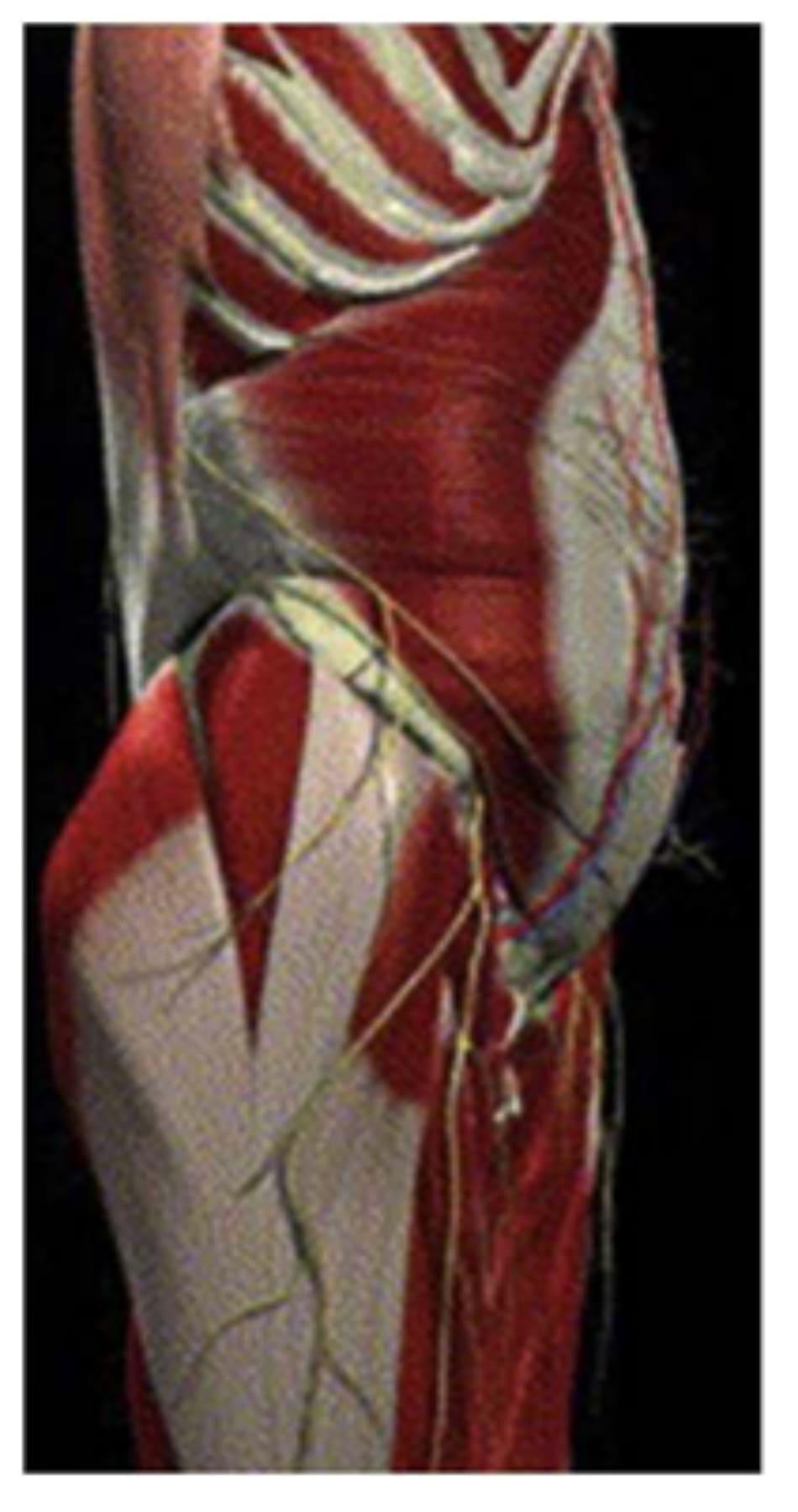 Hình. 15. Mạc đùi với các cân vùng mông-thắt lưng chậu đã được loại bỏ.