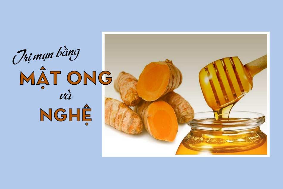 Phương pháp trị mụn bằng mật ong và nghệ tươi